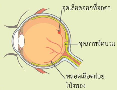 #ศูนย์ตา #โรงพยาบาลศิริราช ปิยมหาราชการุณย์ #เบาหวานขึ้นจอตา #เบาหวานขึ้นจอประสาทตา #เบาหวานขึ้นจอประสาทตา โรคร้าย #โรคเบาหวานขึ้นจอประสาทตา #ตามัว เบาหวาน #ตามัวทําไงดี #ตามัว มองไม่ชัด เกิดจาก