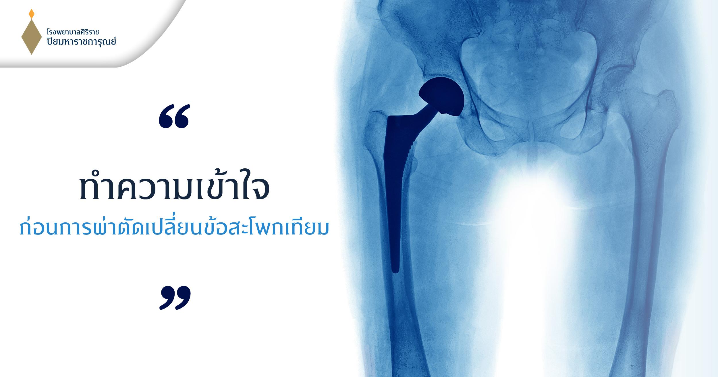 #เปลี่ยนข้อสะโพก #ผ่าตัดเปลี่ยนข้อสะโพก #เปลี่ยนข้อสะโพกเทียม #การผ่าตัดเปลี่ยนข้อสะโพกเทียม #ข้อสะโพกเทียม #รักษาโรคข้อสะโพกเสื่อม #ข้อสะโพกเสื่อม #โรคข้อสะโพกเสื่อม #เช็คข้อสะโพกเสื่อม #hip osteoarthritis #การเตรียมตัวก่อนผ่าตัดข้อสะโพก #การดูแลหลังผ่าตัดข้อสะโพก #ป้องกันข้อสะโพกหลุด