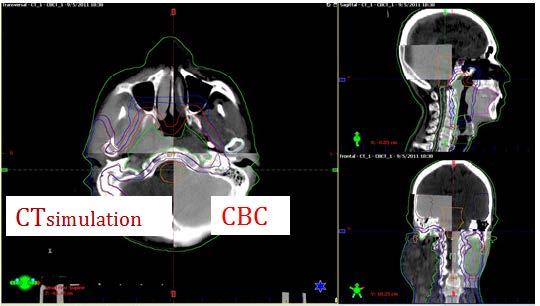 ศูนย์มะเร็ง,Rapid Arc,เครื่องฉายรังสีเร่งอนุภาค,ฉายรังสี,รังสีรักษา