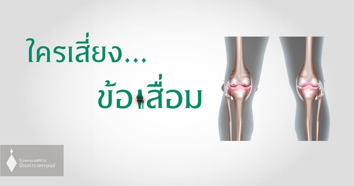น้ำหนักตัวมาก หรือ นั่งยองๆ เสี่ยงข้อเข่าเสื่อม (Ostoearthritis)