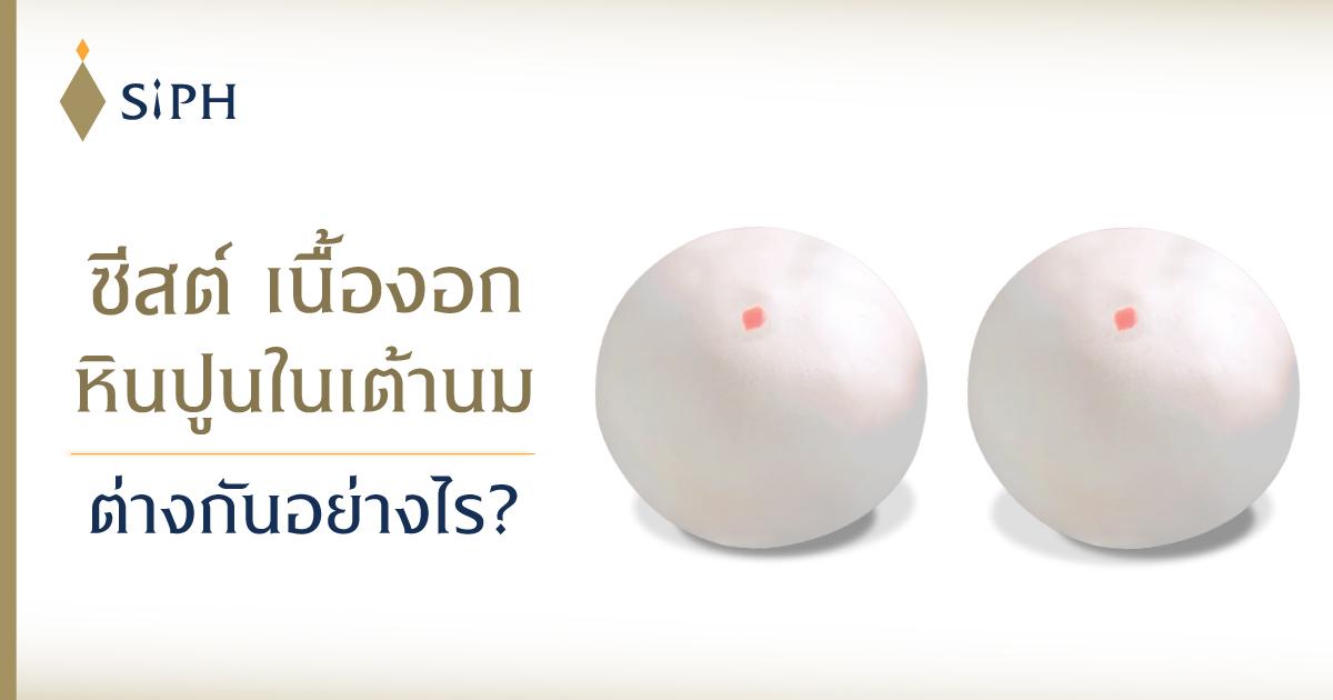 ซีสต์ ก้อนเนื้องอก และหินปูนในเต้านม ต่างกันอย่างไร?