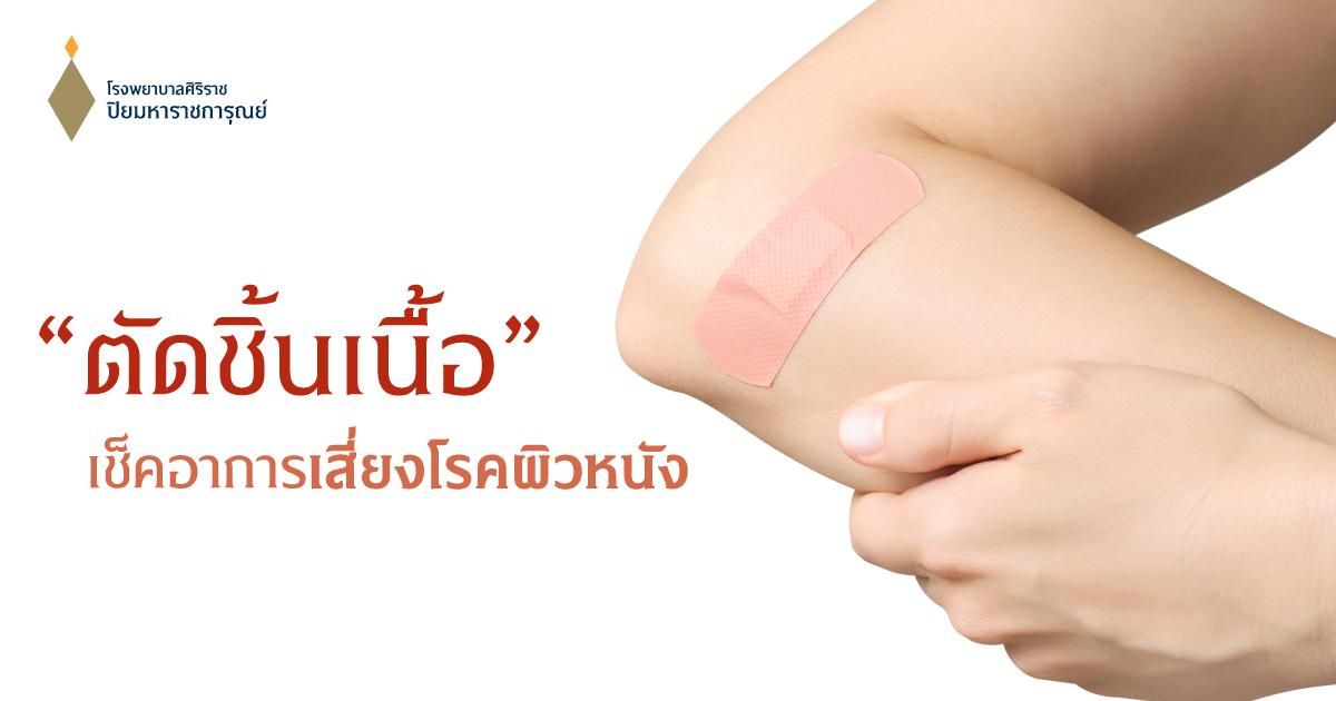ตัดชิ้นเนื้อ ผ่าตัดเล็กเช็คอาการเสี่ยงโรคผิวหนัง (Skin Biopsy)