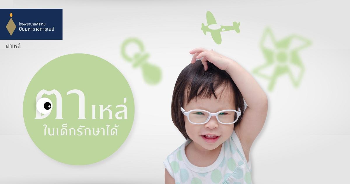 ตาเหล่ในเด็ก รักษาได้ (Strabismus)