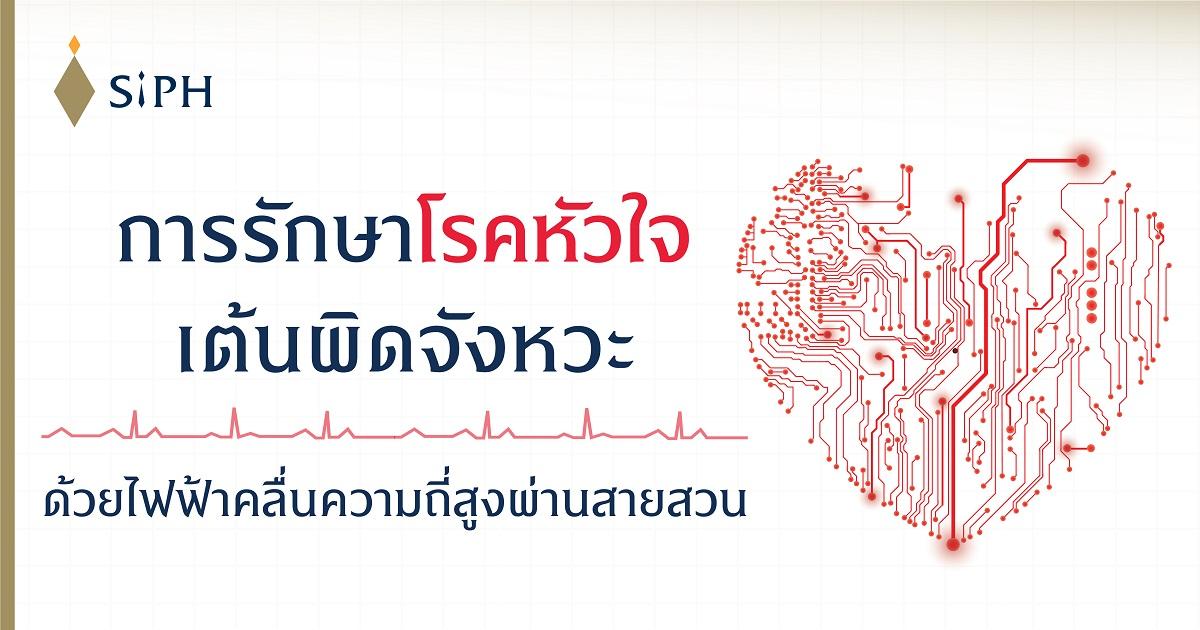 การรักษาโรคหัวใจเต้นผิดจังหวะด้วยไฟฟ้าคลื่นความถี่สูงผ่านสายสวน