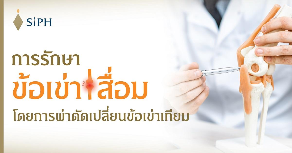 การรักษาข้อเข่าเสื่อมโดยการผ่าตัดเปลี่ยนข้อเข่าเทียม